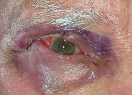 tumori delle palpebre