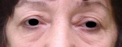 Кои органи поразява псориазисния артрит