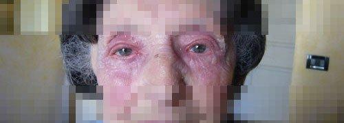 terapia fotodinamica foto prima dopo 1