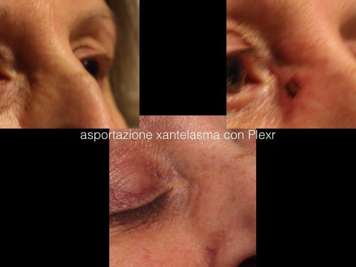 blefaroplastica senza bisturi 14