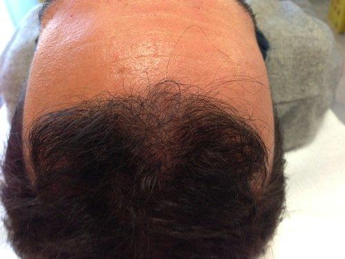 prp capelli risultati 3