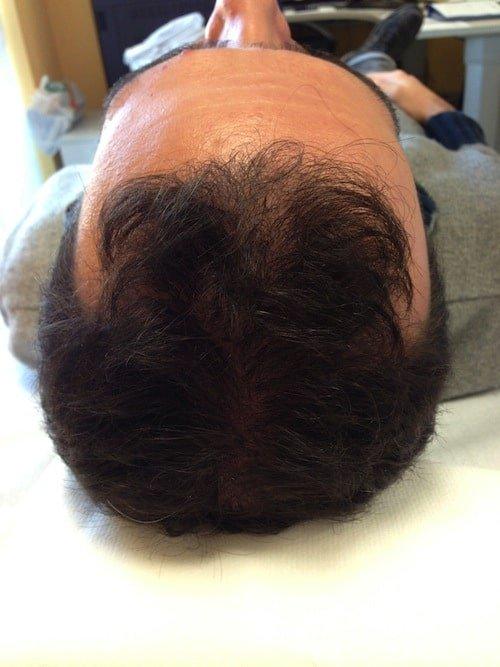 prp capelli risultati 4