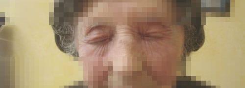 terapia fotodinamica foto prima dopo 4