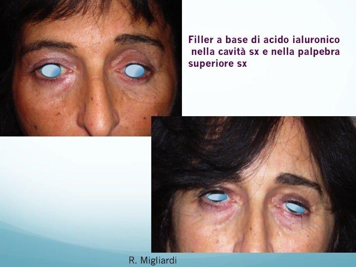filler acido ialuronico 5