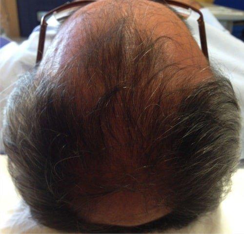 prp capelli risultati 6