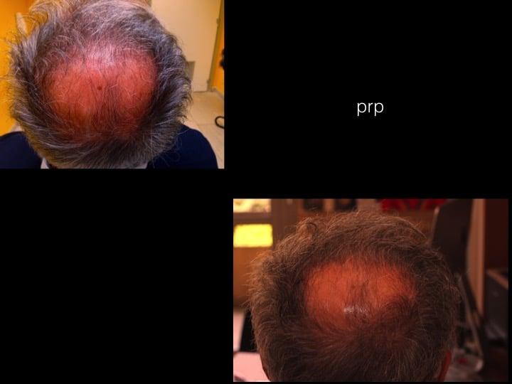 prp capelli 6