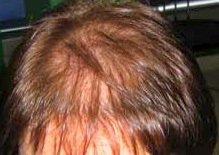 prp capelli 2
