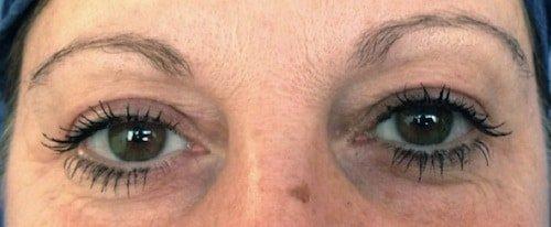 blefaroplastica senza chirurgia 3