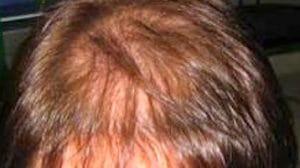 prp capelli 1