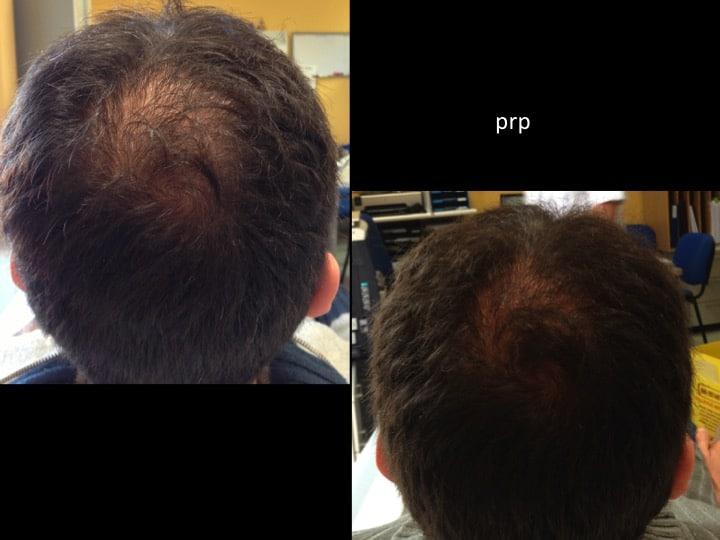 prp capelli 3