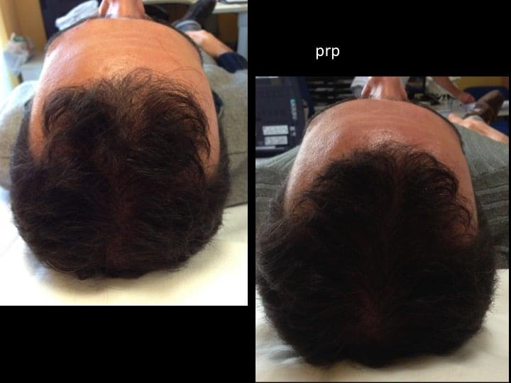 prp capelli 4